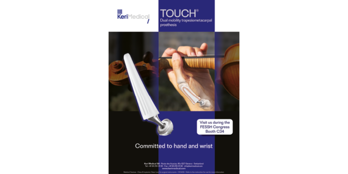 KeriMedical propose la prothèse Touch à double mobilité pour la traitement de la rhizarthrose ou l'arthrose du pouce pour la chirurgie orthopédique