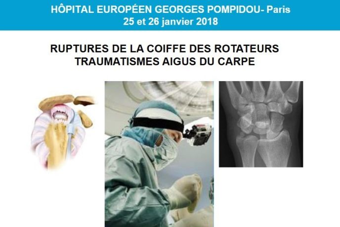 kerimedical congres paris france chirurgie main orthopedie prothese