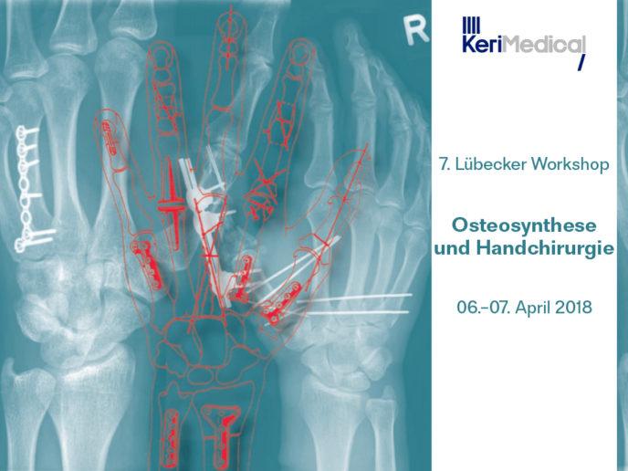 Handchirurgische Osteosynthese Workshop Daumensattelgelenk prothese Duo-Mobiler Pfanne