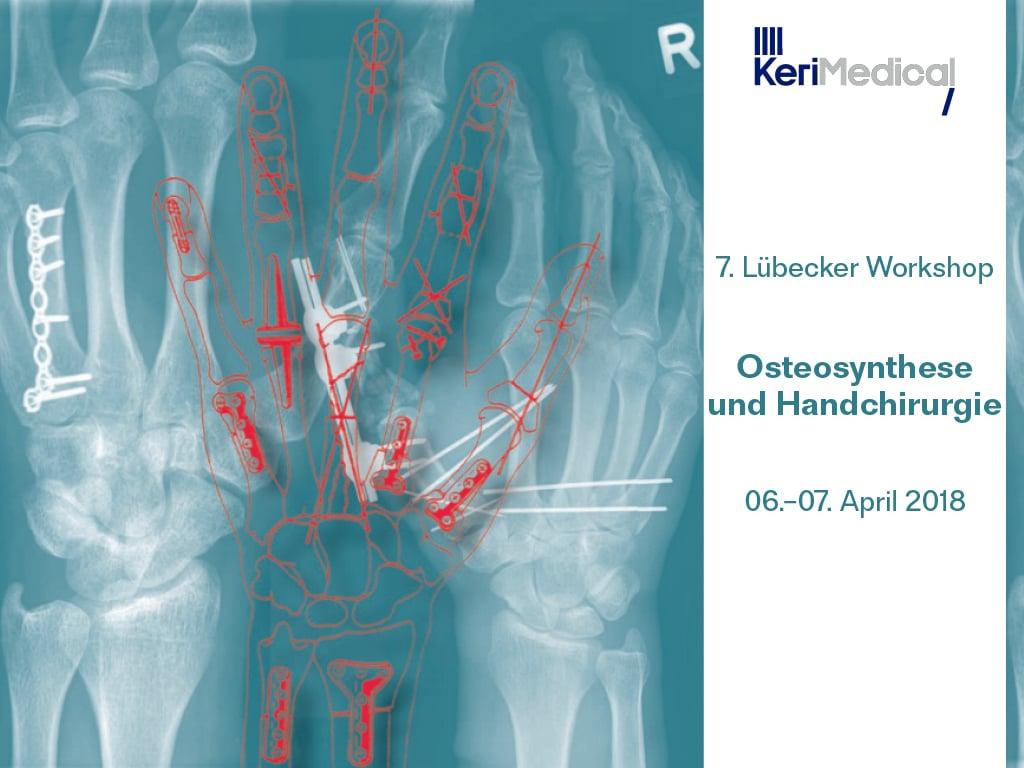 Handchirurgische Osteosynthese-Workshop 2018 - KeriMedical