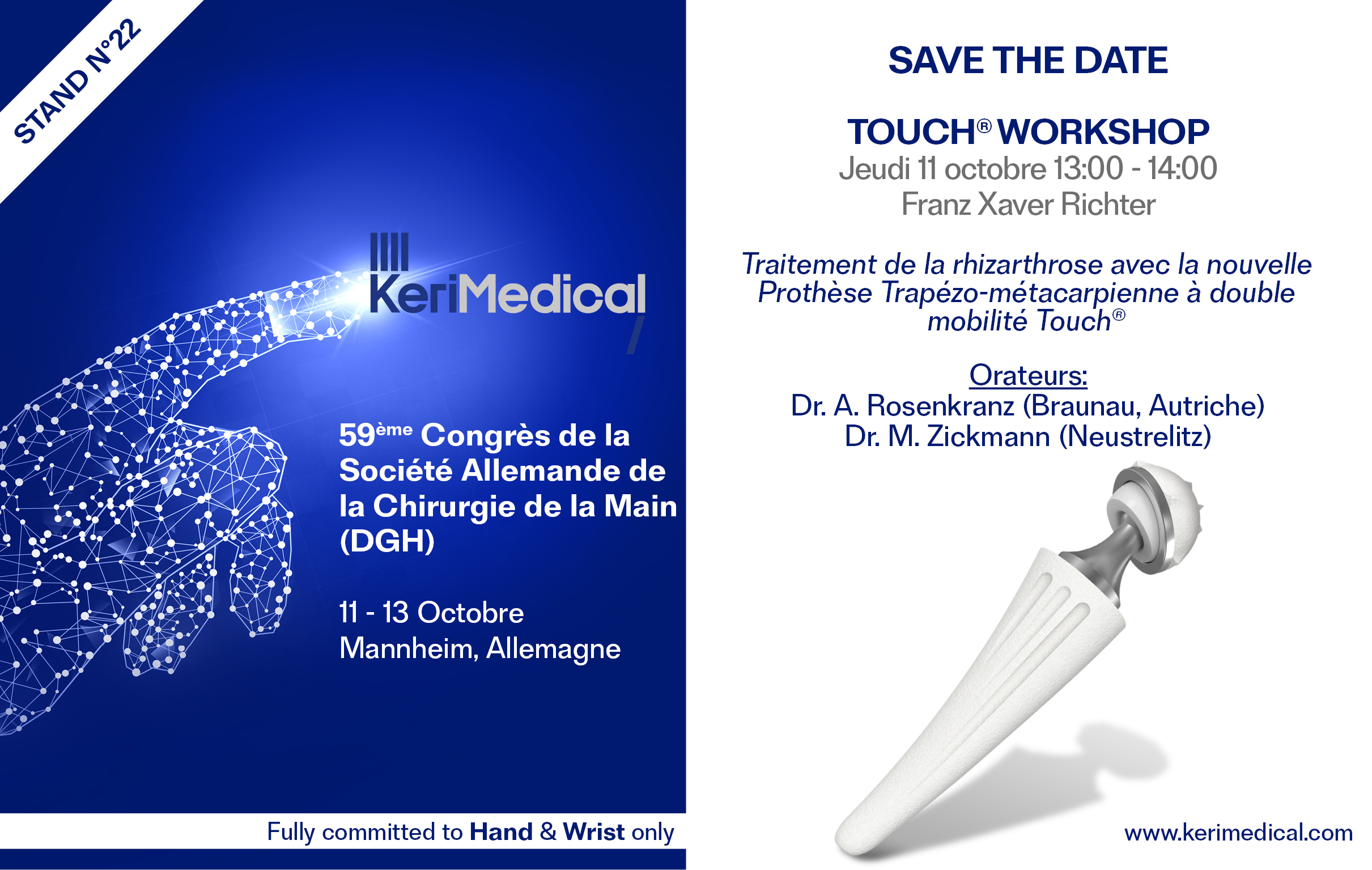 Save the date kerimedical dgh congres allemagne prothese tmc double mobilite trapezo-metacarpienne