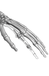 Modélisation main avec implants_CMJN