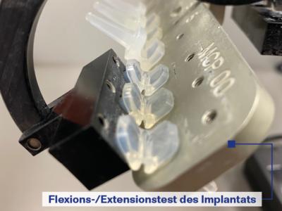 KeriFlex - Flexions Extensionstest des Implantats